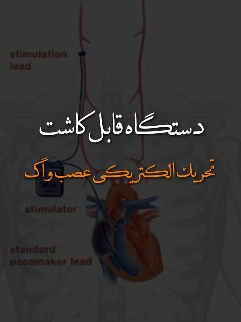 دستگاه قابل کاشت تحریک الکتریکی عصب واگ